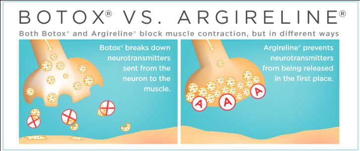 botox vs argireline